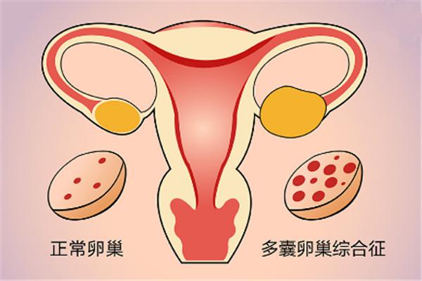 多囊卵巢副本.png
