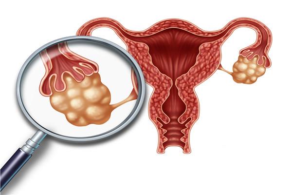 卵巢早衰有什么表现?什么是卵巢早衰?